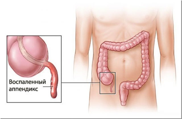 Appendicitis in humans
