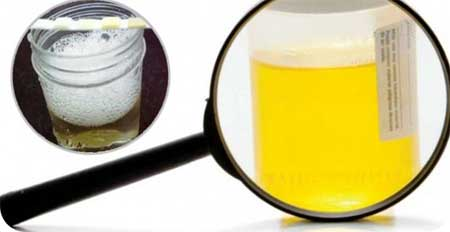 Causes of an increase in urine protein