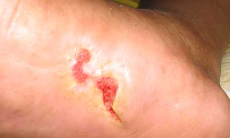The emergence of ulcers, photo 2