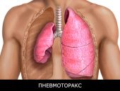 What is pneumothorax