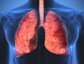 Lung sarcoidosis - what is it?