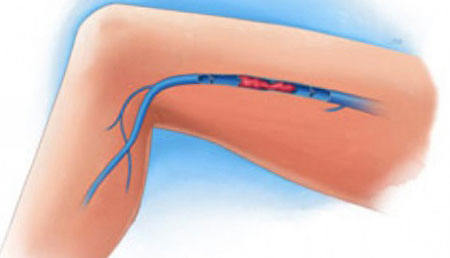 deep vein thrombophlebitis of the lower extremities