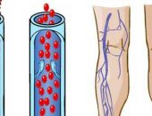 Symptoms of deep vein thrombosis of the lower extremities