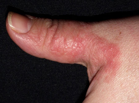 eczema on the fingers of hands, photo