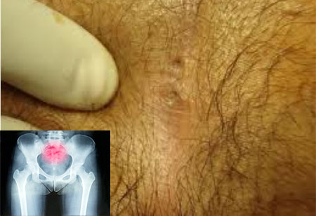 Photo-cysts-coccyx