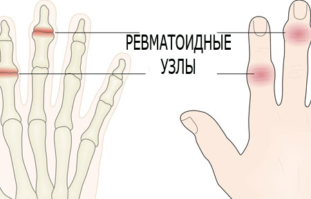 Treatment of rheumatoid arthritis of the hands