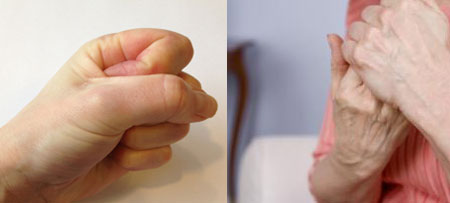 The first symptoms of rheumatoid arthritis of the fingers