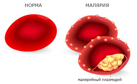 malarial erythrocytes, clinic of disease
