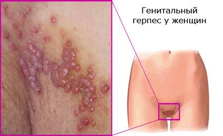 genital herpes in women photo