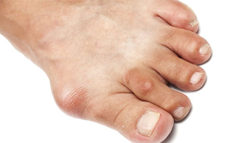 Signs of gout, inflammation photo