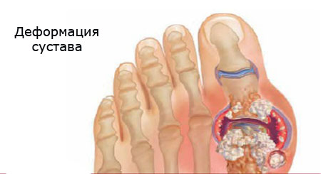 progression of gout joint deformity