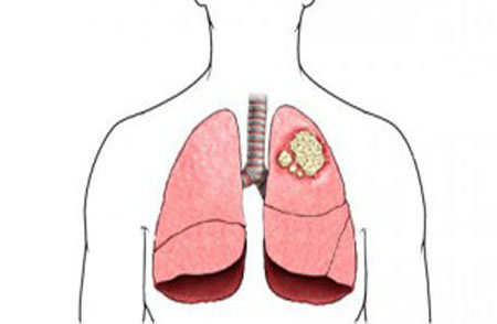 Lungs' cancer