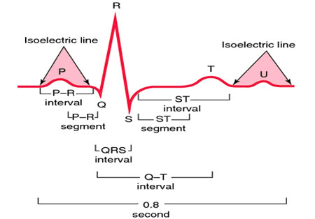 Decoding ECG of the cardiogram