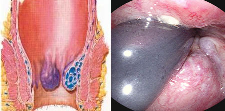 Internal hemorrhoids, photo and scheme