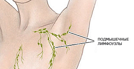 Inflammation of the lymph nodes under the arm