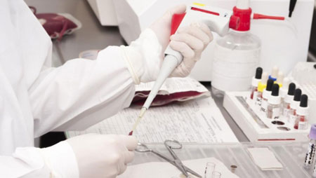 Biochemical analysis of blood: decoding in adults, the norm in the table