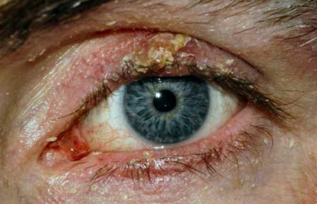 The first symptoms of blepharitis photo