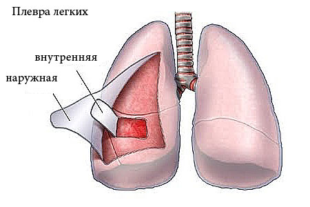 Pleurisy of the lungs