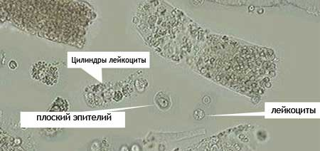 flat epithelium-in-urine