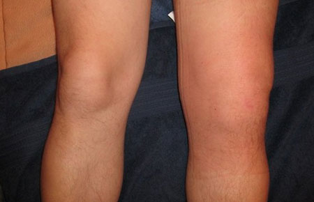 Symptoms of synovitis of the knee joint