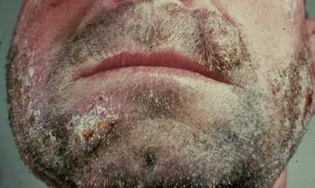 ringworm on the face photo