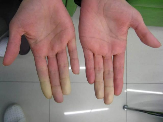 Hands with pale fingers in Raynaud's disease after cold test