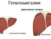 Signs of Hepatomegaly