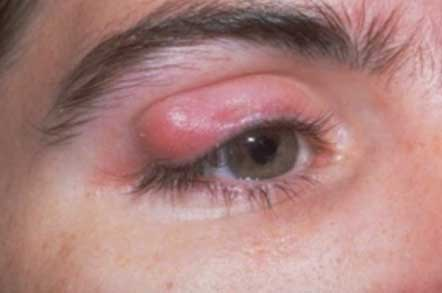 Symptoms of Chalazion
