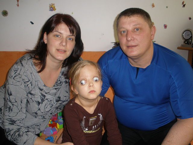 A girl suffering from exophthalmos, with parents