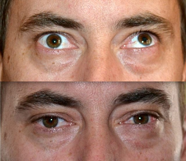 Human gaze before and after squint correction surgery