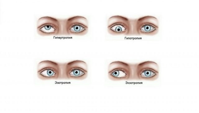 Types of friendly strabismus