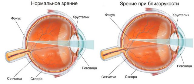 Normal and nearsighted eye