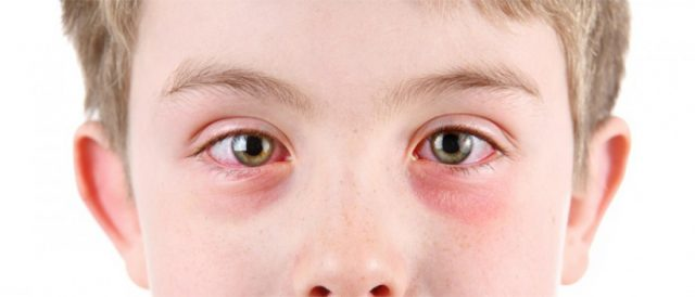 Redness of the eyes of the boy