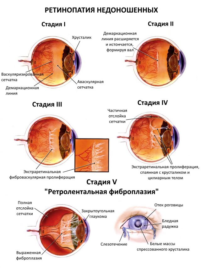 Scheme of retinopathy stages of prematurity