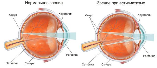 Vision is normal and with astigmatism