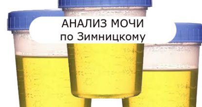 Urinalysis according to Zimnitsky: urine collection, interpretation of results, features