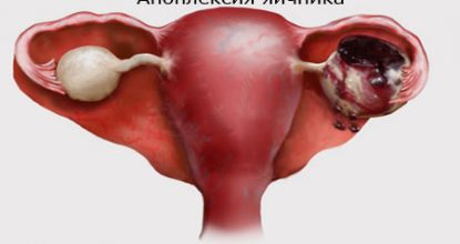 Ovarian apoplexy: symptoms, treatment and effects