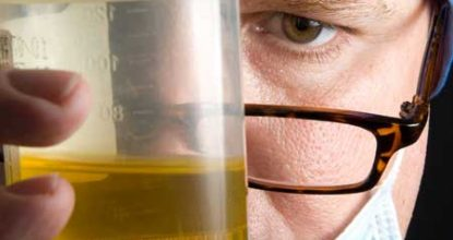 Protein in the urine: what does it mean? The reasons for the increase and the rate