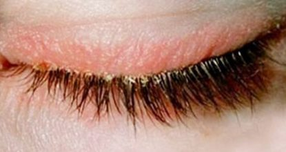 Blepharitis: symptoms and treatment, prognosis