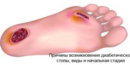 Diabetic foot: causes, shape, initial stage