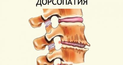 Dorsopathy of the cervical, lumbosacral and thoracic spine