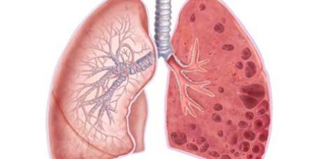 Emphysema of the lungs: symptoms, treatment, life forecast