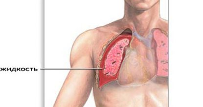 Hydrothorax, what is it? Causes, signs and treatment of hydrothorax of the lungs