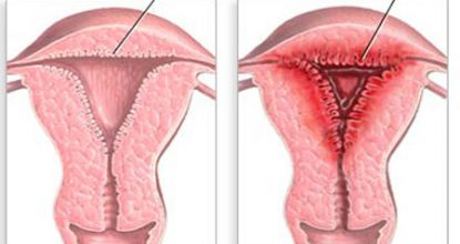 Endometrial hyperplasia: types, symptoms and treatment, prevention