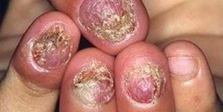 Nail fungus treatment - advanced form - methods and features