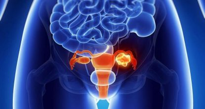 What is ovarian teratoma, its causes and methods of treatment?