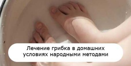 Treatment of nail fungus and foot in the home by folk remedies