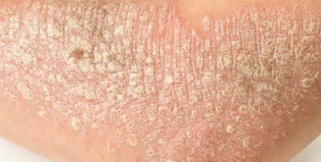 Home treatment for psoriasis