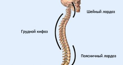 Cervical and lumbar spine lordosis: treatment and symptoms