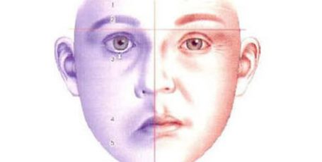 Neuritis of the facial nerve: symptoms and treatment, prognosis